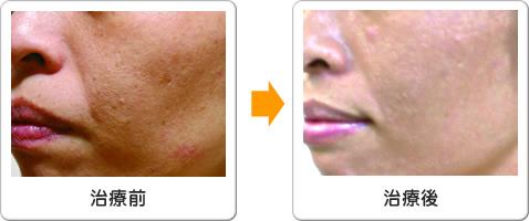 頬のたるみの治療前と治療後