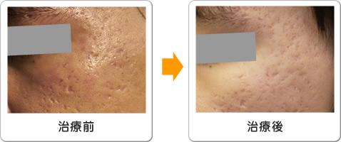 eCO2(CO2フラクショナルレーザー)による頬のにきび跡凸凹治療の施術前・施術後
