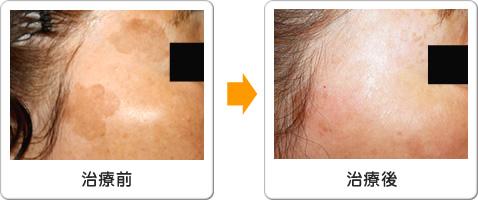 老人性色素斑シミ治療