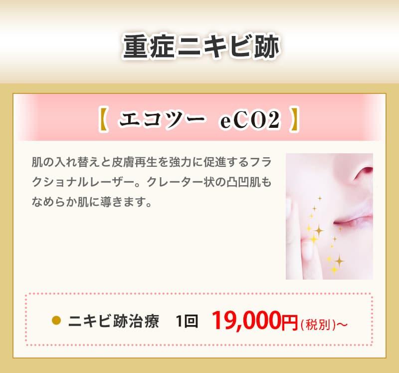 重症ニキビ跡【エコツー eCO2】ニキビ治療 1回 19,000円(税別)〜