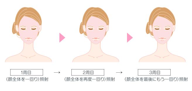 顔3周分をフルパワー照射。